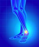 Dolore e gonfiamento sull'interno della caviglia Dolore di un piede  illustrazione vettoriale