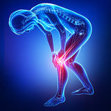 Dolore femminile di giunti e del ginocchio in blu Fotografia Stock Libera da Diritti