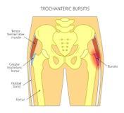 Dolore nella borsite joint_trochanteric dell'anca illustrazione di stock