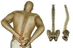 Dolore nella parte posteriore ed in spina dorsale Immagini Stock