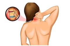 Dolore nella spina dorsale cervicale illustrazione di stock