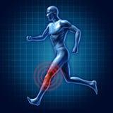 Dolore unito del ginocchio del corridore umano di terapia medico Fotografie Stock