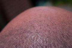 Close-up short cropped hair balding male head. Royalty Free Stock Image