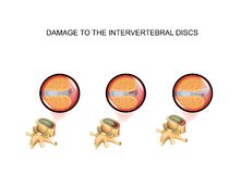 Dommages de disque intervertébral vert?bre image stock