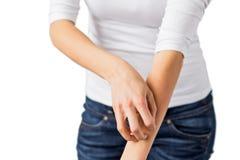 Donna che graffia il suo braccio immagini stock libere da diritti