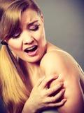 Donna che graffia il suo braccio che prude con l'eruzione di allergia Fotografie Stock Libere da Diritti