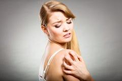 Donna che graffia il suo braccio che prude con l'eruzione di allergia Immagini Stock
