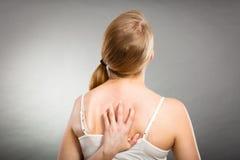 donna che graffia la sua parte posteriore che prude con l'eruzione di allergia Fotografie Stock