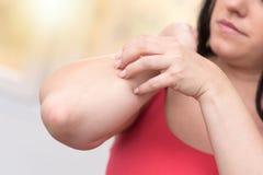 Donna che ha che prude e che graffia il suo braccio, effetto della luce Immagini Stock