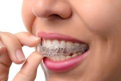 Donna che indossa l'istruttore ortodontico del silicone Fotografia Stock