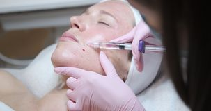 Donna che riceve l'iniezione del botox nella sua guancia stock footage