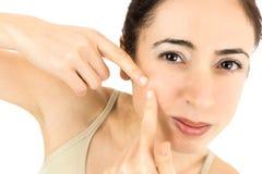 Donna con acne fotografia stock libera da diritti