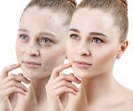 Donna con acne prima e dopo il trattamento ed il trucco fotografia stock libera da diritti