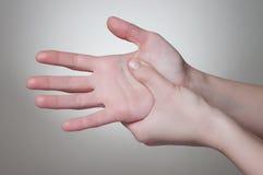 Donna con dolore della mano Fotografia Stock