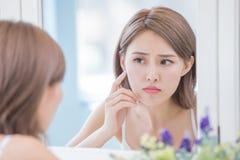 Donna con il problema dell'acne fotografia stock libera da diritti
