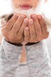 Donna con l'allergia dei capelli dell'animale domestico Fotografie Stock Libere da Diritti