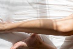 Donna con l'eruzione o la papula sulla sua gamba dalle allergie, problema di cura di pelle di allergia di salute Immagini Stock Libere da Diritti