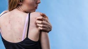 Donna con la parte posteriore dell'acne di problema di pelle sopra fotografia stock
