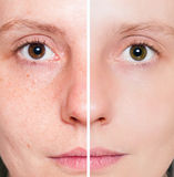 Donna con pelle chiazzata con i pori profondi Immagini Stock Libere da Diritti
