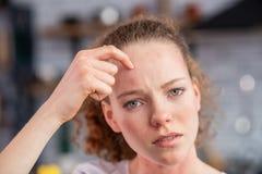 Donna dai capelli lunghi afflitta che indica sul punto allergico immagine stock libera da diritti