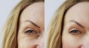 Donna della grinza del fronte prima e dopo immagini stock