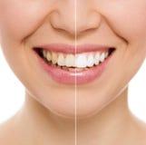Donna di cure odontoiatriche Fotografie Stock Libere da Diritti