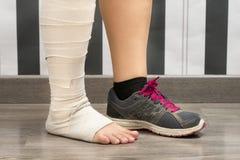 Donna di sport danneggiata immagine stock libera da diritti