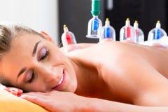 Donna nella terapia foggiante a coppa medica alternativa immagine stock