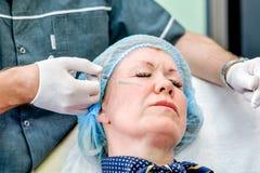 Donna senior che ottiene l'iniezione di cura di pelle Immagini Stock