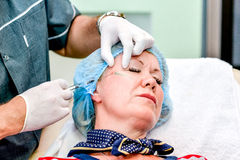 Donna senior che ottiene l'iniezione di cura di pelle Immagini Stock Libere da Diritti