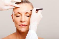 Chirurgia plastica senior della donna Fotografie Stock Libere da Diritti