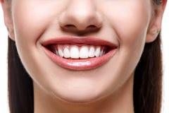 Donna sorridente con i denti bianchi Fotografie Stock Libere da Diritti