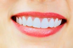Donna sorridente con i grandi denti bianchi sani fotografie stock libere da diritti
