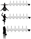 Donne e cardiogram illustrazione di stock