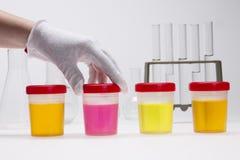 Dopa provet av urin på laboratorium fotografering för bildbyråer