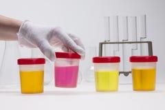 Dopa provet av urin på laboratorium royaltyfria bilder