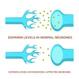 Dopamin level in normal neurones and with Parkinson disease. Normal neurons and with Parkinson disease dopamine level vector human body sickness nerves royalty free illustration