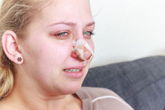 Dopo l'operazione del naso Fotografia Stock Libera da Diritti