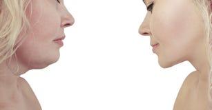 Doppio mento della donna prima e dopo il collage di procedure di rimozione fotografia stock