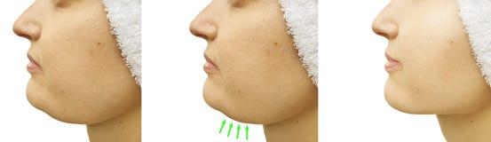 Doppio mento della donna prima e dopo il trattamento del collage di correzione di perdita che saggingtightening fotografia stock