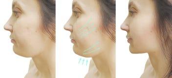 Doppio mento della donna prima e dopo il trattamento estetico fotografia stock