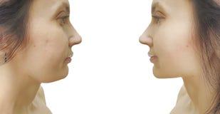 Doppio mento della donna prima e dopo il trattamento estetico cascante di rimozione immagine stock