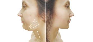 Doppio mento della donna prima e dopo il trattamento estetico cascante immagini stock
