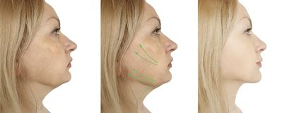 Doppio mento femminile prima e dopo le procedure fotografie stock