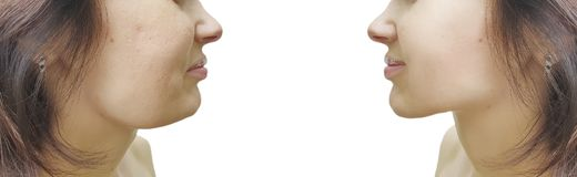 Doppio mento femminile prima e dopo tensione di correzione fotografia stock libera da diritti