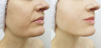 Doppio mento femminile prima e dopo tensione di correzione di problema immagini stock