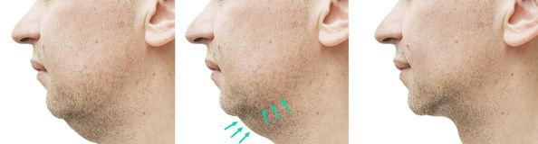 Doppio mento maschio prima e dopo il collage di trattamento che dimagrisce sollevamento fotografie stock