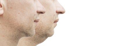 Doppio mento maschio prima e dopo il sollevamento di trattamento immagine stock libera da diritti
