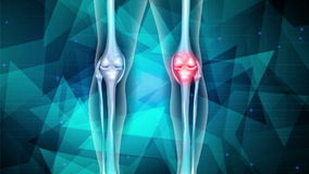 Dor da articulação do joelho ilustração stock