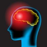 Dor de cabeça ilustração stock